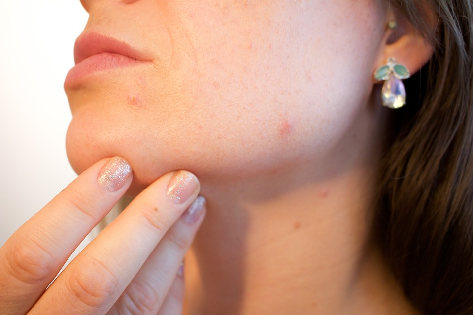 Home remedies for acne or pimple @amzwold